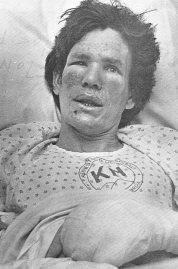 Survivor Jim Phillips